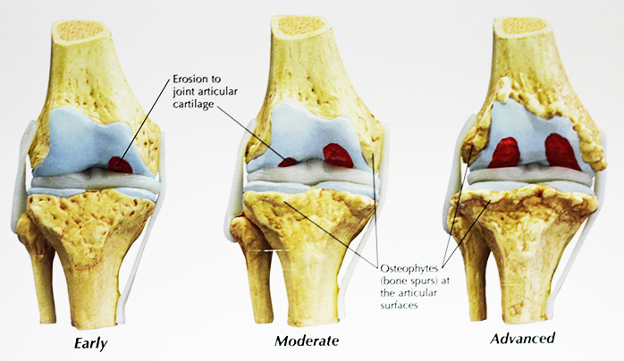 AJRC_osteoarthritis model smaller